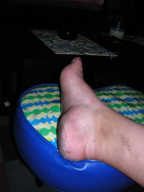 Behold, the Carny Foot