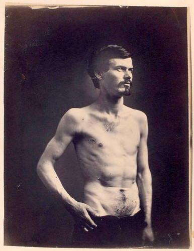 [James Brownlee : Wounds in chest & abdomen.]