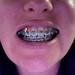 20081104-teeth