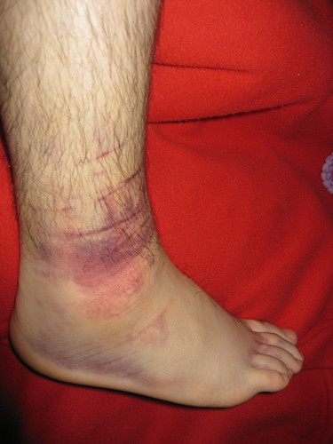 Ankle swell and internal bleeding