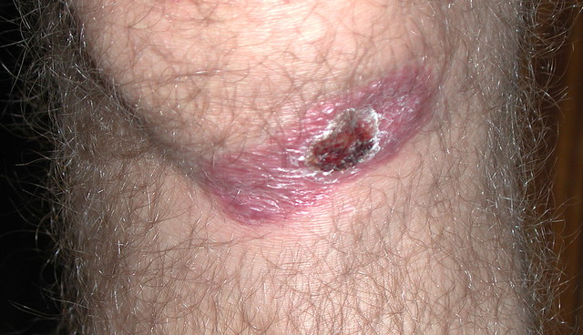 Tertiary Scab