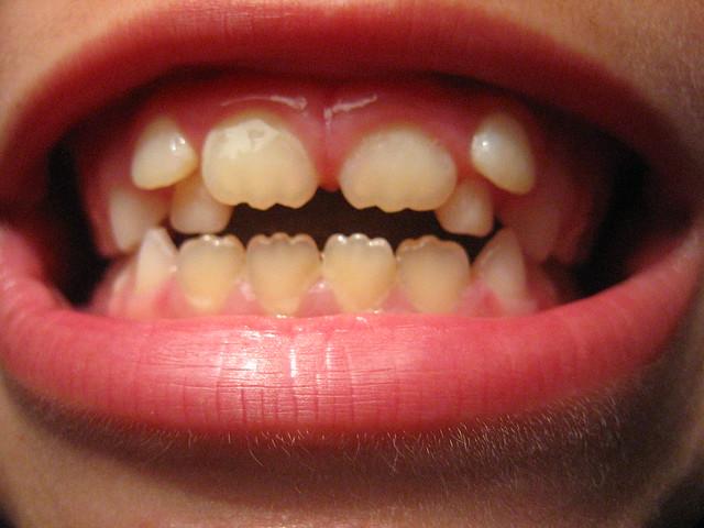 Header of Dents