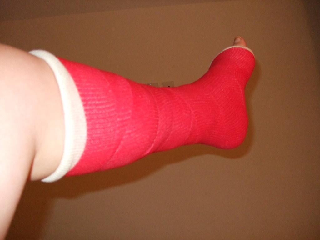 The Most Interesting Flickr Photos Of Leg Cast Picssr