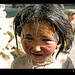 tibetan-girl-bandaids-close