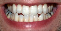 tooth, tooth bleaching, oral hygiene, mouth, jaw, organ,