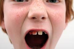 nose, tongue, face, tooth, skin, lip, ear, cheek, close-up, mouth, jaw, yawn, eye, organ,