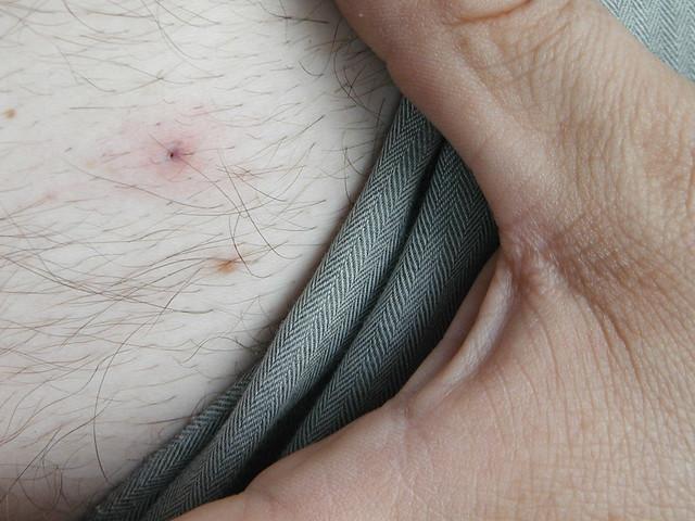Deer fly bite symptoms