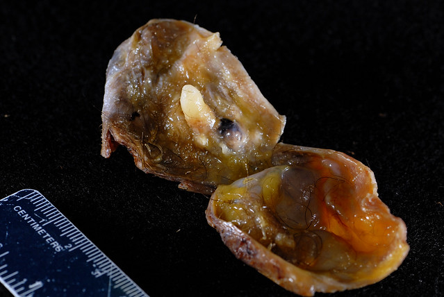 Dermoid cyst with tooth   Flickr - Photo Sharing!