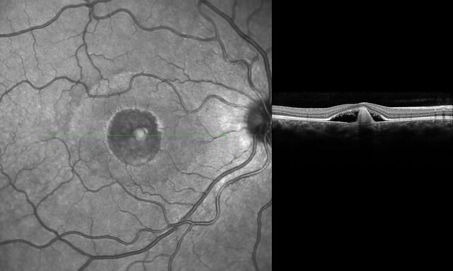 2931652924 d681747947 z jpgBest Disease Macular Dystrophy