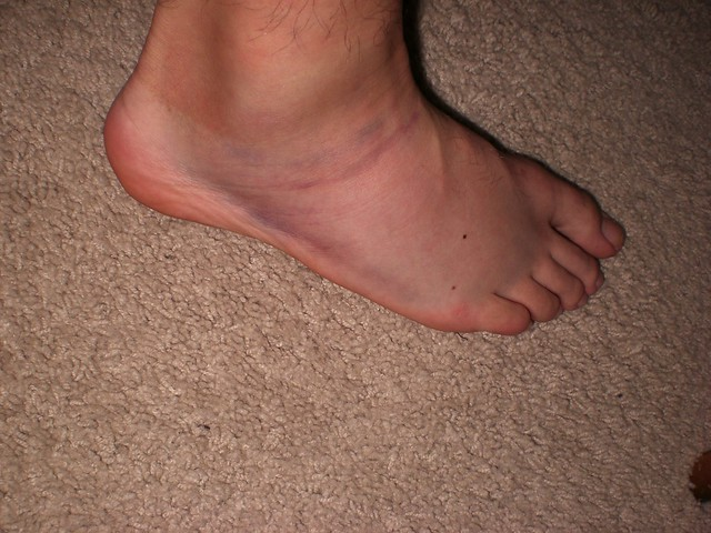 Rolled Ankle   Flickr - Photo Sharing!