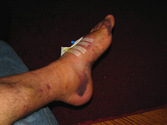 One Week After Surgery