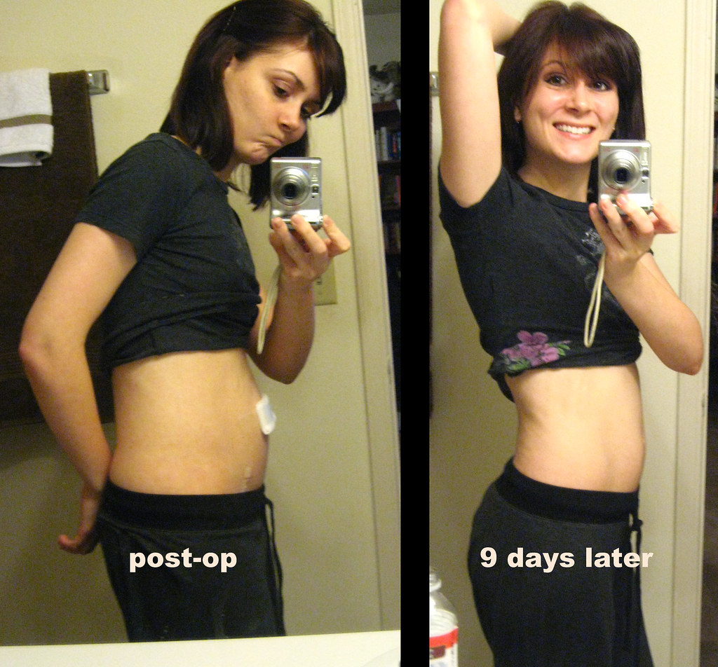 16 day slim down photo 8