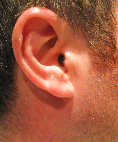 Ear - Right - 104/365