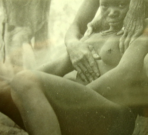 wounded nigerian girl by greyherbert