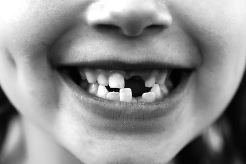 missing front tooth teeth teeths