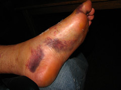 Two Weeks After Surgery