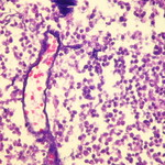 Small cell carcinoma - Azzopardi effect  Case 112