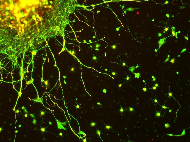 Neurons, In Vitro Color!