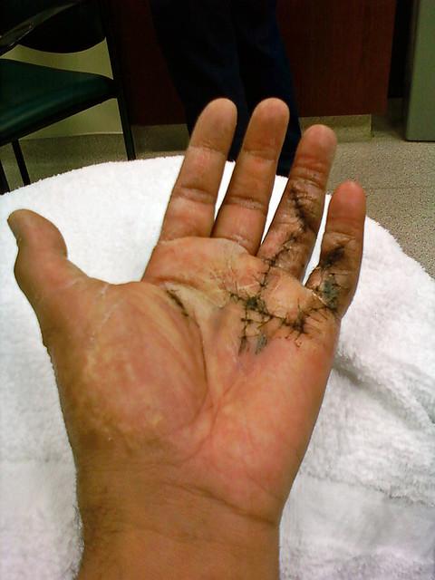my left hand.jpg