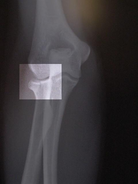 left elbow x ray - photo #37