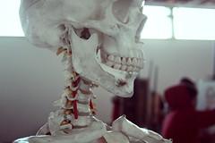 Arthrose - Halswirbelsäule mit Bewegungseinschränkungen