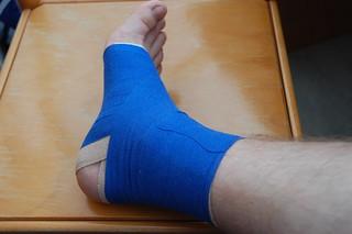 verstauchter Knöchel / wrench ankle