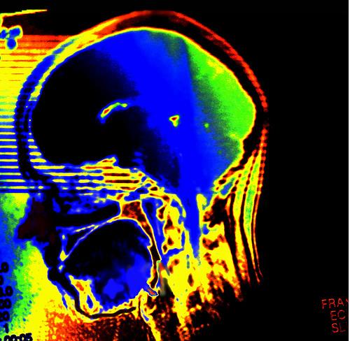 Do you find my brain? - Auf der Suche nach meinem Gehirn by alles-schlumpf