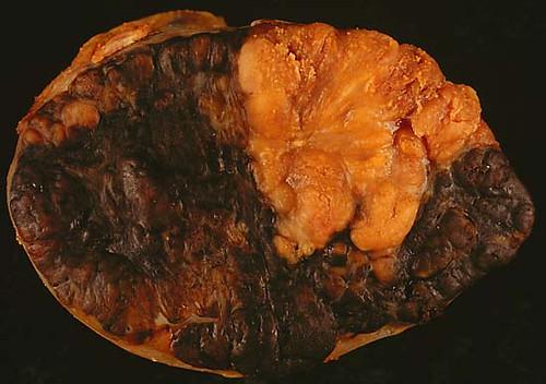 Melanoma metastasis to LN
