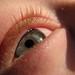 Small photo of Allergy Eye