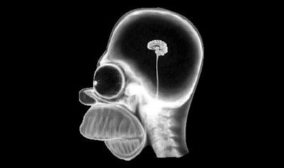 Cool Blog Sociale - 15 July 2008 - Homer Simpson's head through X-ray