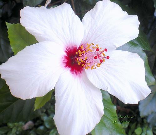 Hibiscus Fights Melanoma Treatment Of Melanoma