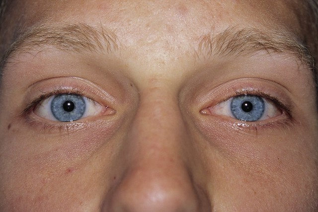 how to put in soft contacts