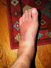 Five Weeks After Surgery