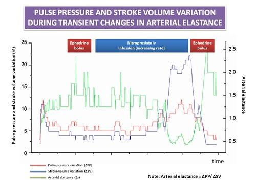 pulse pressure and stroke volume relationship