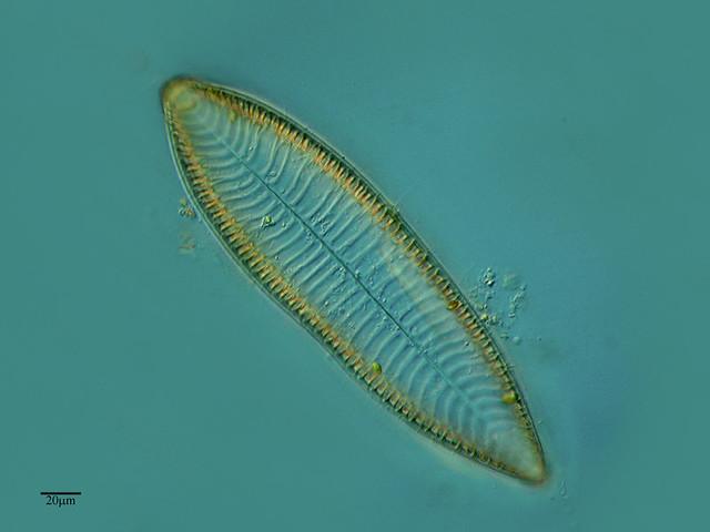 Surirella una diatomea gigante flickr photo sharing