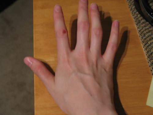 Injured knuckle
