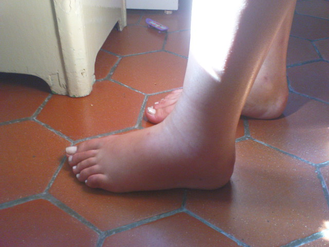 Cankles Flickr Photo Sharing