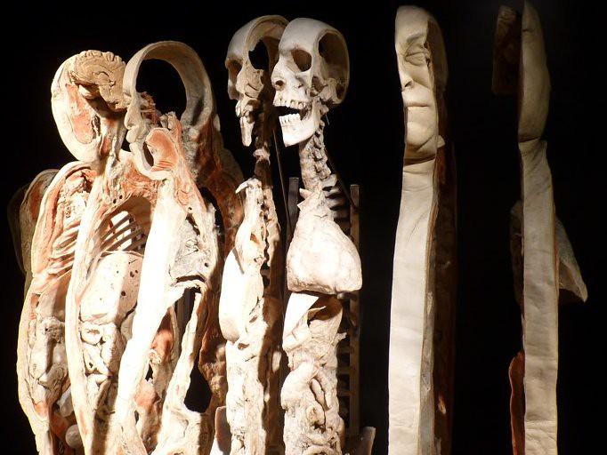 20100429 bodyworlds calgary - 13