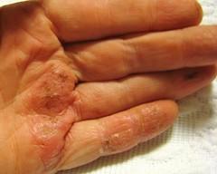 search eczema