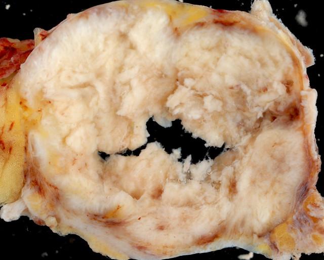 metastatic squamous cell carcinoma
