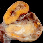 Human Ovary with Fully Developed Corpus Luteum