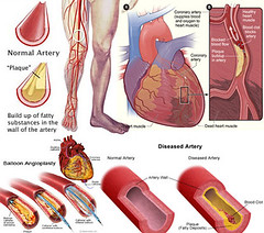 5th grade science human body systems w pictures flashcards dvt diagram
