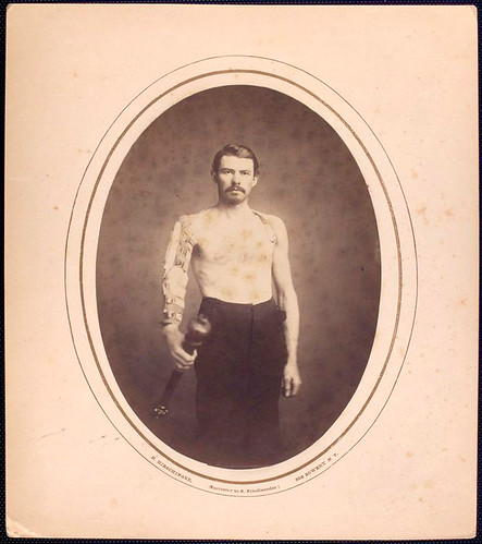 [Shirtless man stands with right arm in brace and harness, g...