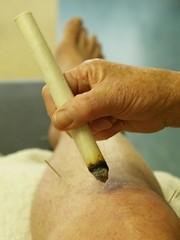 acupuncture on my knee
