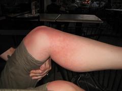 Brutal Heat Rash