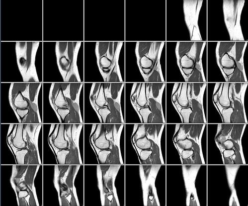 Магнитно резонансная томография коленного сустава