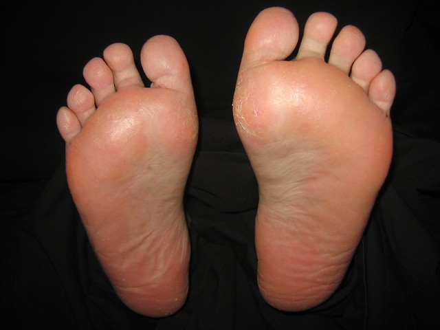 Swelling of the Feet and ankles - Womens Health - MedHelp
