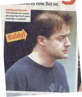 Brendan fraser flickr photo sharing - Brendan fraser bald ...