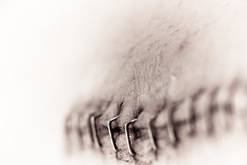 sutura V