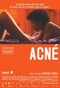 Poster Acné